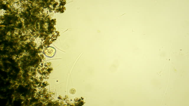 Microorganism - Vorticella video