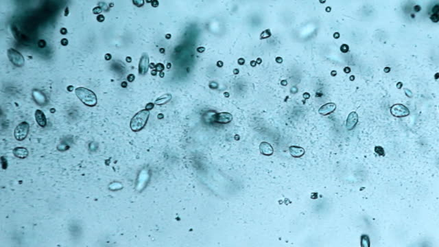 Microorganisms - paramecium video