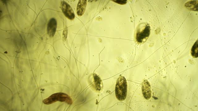 Microorganisms: euplotes video