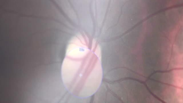 vidéos et rushes de macro extrême microscope bouchent coup de œil rempli de rouge des vaisseaux sanguins réalisés sur le matériel d'examen médical moderne - rétine