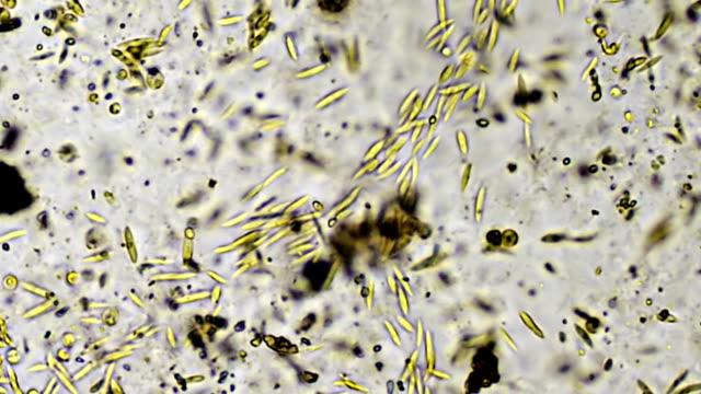 Microscopic Algae Sample 400x (HD) video