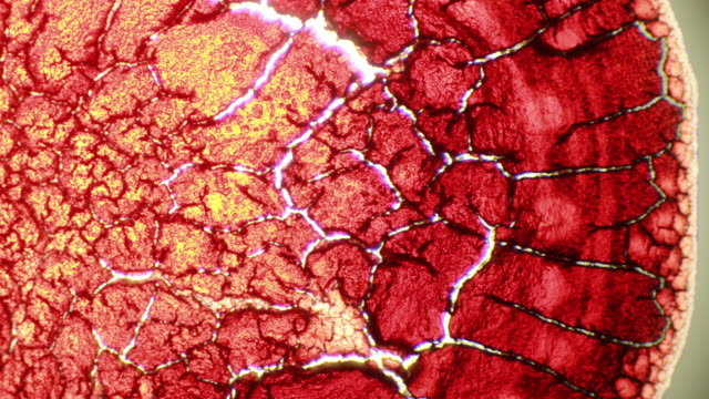 microscopic time lapse - abstract grunge pattern of drying drop of blood - ingrandimento video stock e b–roll