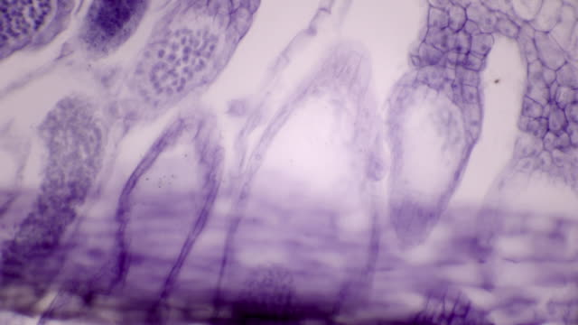 microscopic view of polytrichum antheridia (haircap moss) - мембрана клетки стоковые видео и кадры b-roll