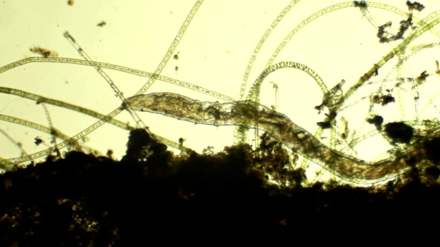 stockvideo's en b-roll-footage met microscopic worm aelosomna - worm