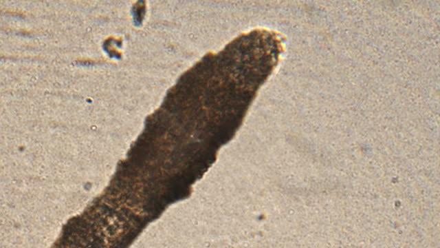 mikroskopi av människohår (ögonfrans och ögonbryn). förstoring 150x rot och hår stjälk i detalj under mikroskop. - medicinskt stickprov bildbanksvideor och videomaterial från bakom kulisserna