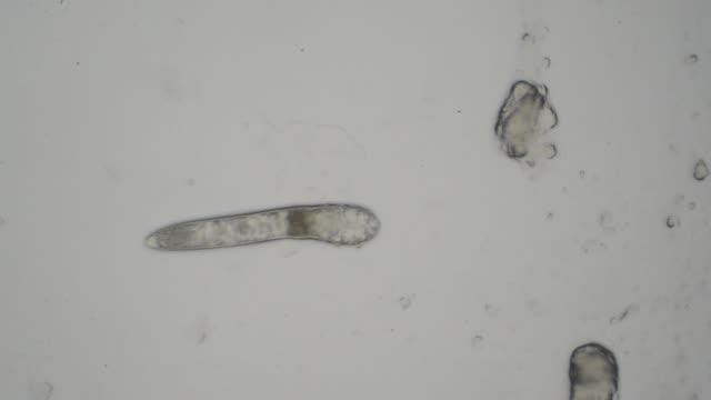 Mite Mite under microscope jp201806 stock videos & royalty-free footage