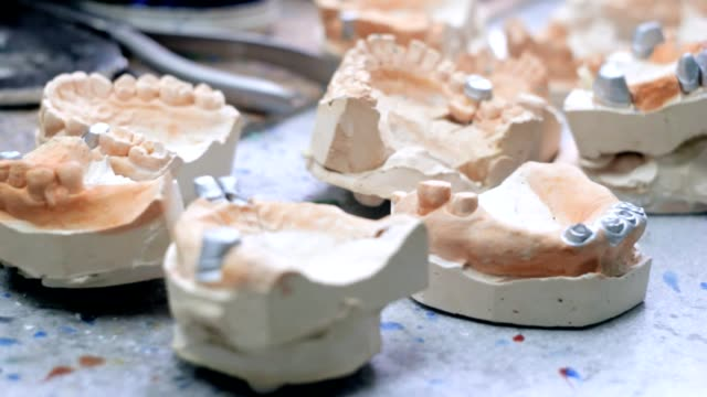 Models of human jaws in the dental laboratory video