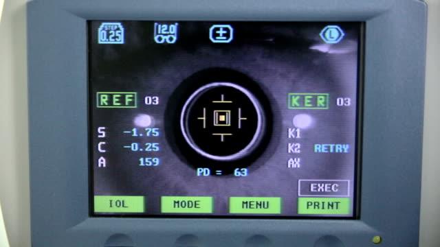 vidéos et rushes de machine automatique moderne examinant le globe oculaire. test d'examen de vue sur un écran de matériel médical professionnel - examen ophtalmologique