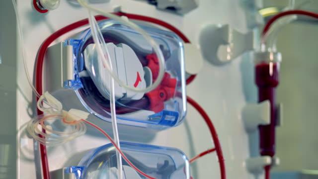 vídeos de stock, filmes e b-roll de modernos equipamentos médicos para procedimento de hemodiálise. conceito de equipamento médico moderno. - rim órgão interno