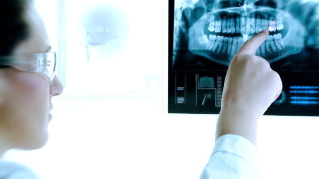Moderno imagem de raio-X. Dentista reserch. - vídeo