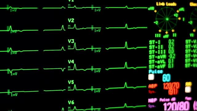 ecg messgerät - medizinisches untersuchungsgerät stock-videos und b-roll-filmmaterial