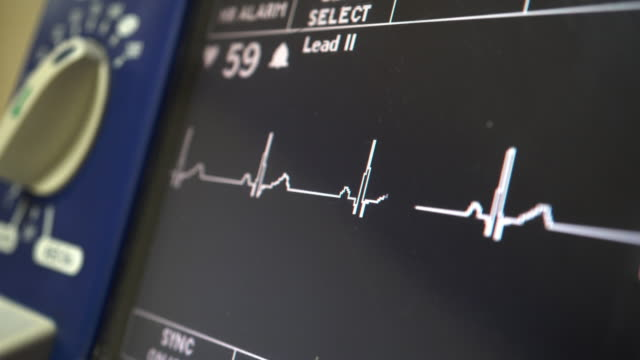 ECG Monitor ECG Patient monitor working. defibrillator stock videos & royalty-free footage