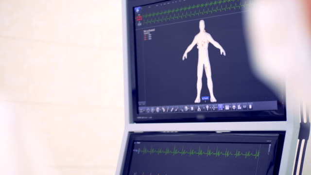 Monitoring of the patient's physical condition. Heart rate. Monitoring of the patient's physical condition. Heart rate.  4K. electrode stock videos & royalty-free footage