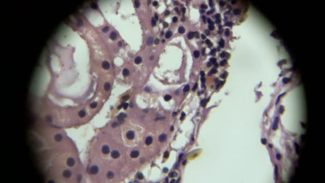 Monolayer cubical epithelium view in microscopy video