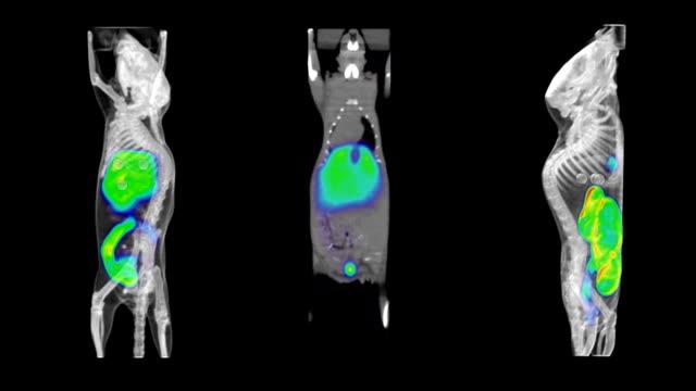 Mouse PET CT Scans video