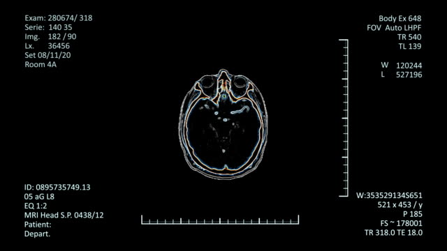 Mri Scan Monitor with Scan image of Head Modern radiology examinations images of human brain with additional medical data. more options in my portfolio implant stock videos & royalty-free footage