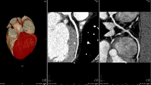 vídeos y material grabado en eventos de stock de muiti vista de cta coronaria representación 2d y 3d de la arteria. angiographphy de ct para la enfermedad cardíaca. concepto de tecnología. - arteriograma