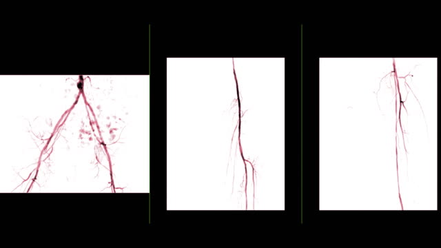 vídeos de stock e filmes b-roll de multi view of angiogram of left femoral artery  showing vessel isolated on white background  for diagnosis atherosclerosis. - artéria humana