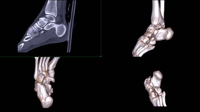 Multi view of CT ankle joint or CT Scan of Right ankle 2D sagittal plane and 3D rendering showing fracture talus bone.. Multi view of CT ankle joint or CT Scan of Right ankle 2D sagittal plane and 3D rendering showing fracture talus bone.. ankle stock videos & royalty-free footage