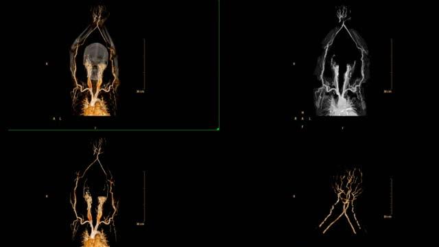 vidéos et rushes de multi view de l'artère brachiale cta ou balayage de ct de l'image de rendu 3d d'extrémité supérieure pour diagnostiquer la sténose brachique d'artère. - artériographie