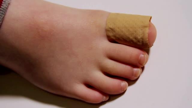 mummia mettere un gesso su un piccolo bambino piedi. - dito del piede video stock e b–roll