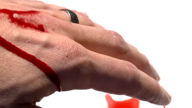 Nasty Bleeding Cut On Hand Stock Video Download Video Clip Now Istock