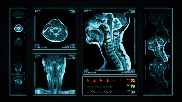 Neck MRI Scan. Top, front and lateral view. Blue. 3 videos in 1 file. Neck´s Magnetic Resonance Imaging.  Animation showing  top, front, lateral view and ECG display. Each video is loopable, full HD. Animation created exclusively for iStockphoto. diagnostic medical tool stock videos & royalty-free footage