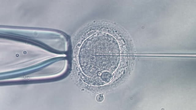 Needle puncture of human egg and sperm injection
