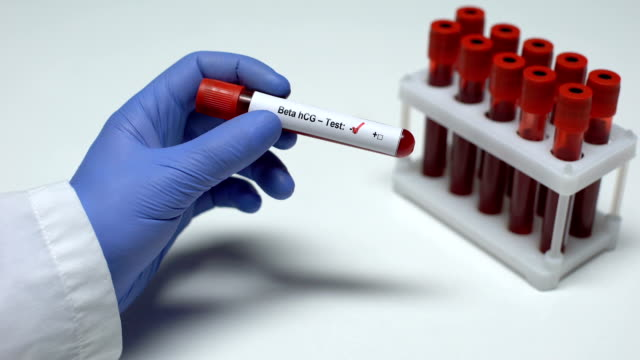 Negativer Beta-hCG-Test, Arzt mit Blutprobe in der Röhre, Gesundheitsuntersuchung – Video