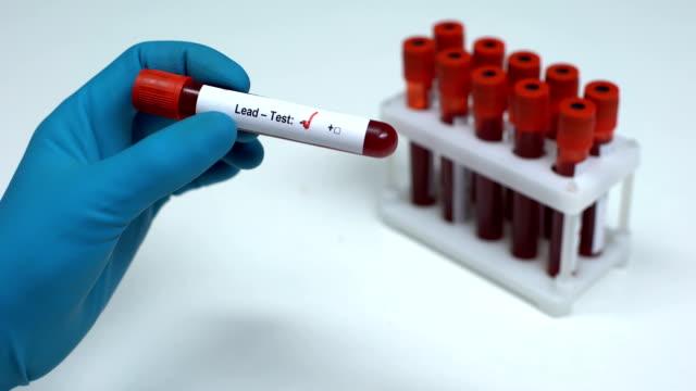 vídeos y material grabado en eventos de stock de prueba de plomo negativo, médico mostrando muestra de sangre, investigación de laboratorio, chequeo de salud - nocivo descripción física