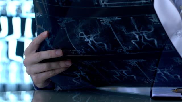 vídeos de stock e filmes b-roll de neurologist looking patient x-ray image, blood vessels disease clinical research - arteriograma