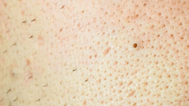 non groomed and ditry male skin with acnes and bristle, macro