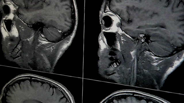 MRI of a head MRI of a head physiology stock videos & royalty-free footage