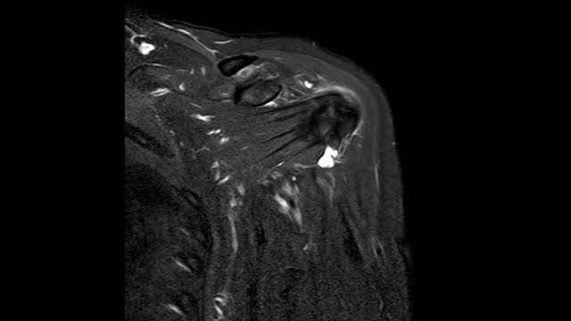 mri of left shoulder history of rotator cuff tear with suspected lipoma of left shoulder, partial tear of articular side of subscapularis tendon and lipoma at posterolateral aspect of left upper arm. - clavicola video stock e b–roll