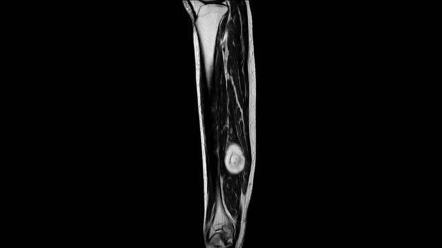 足の mri (磁気共鳴画像) - mri検査点の映像素材/bロール