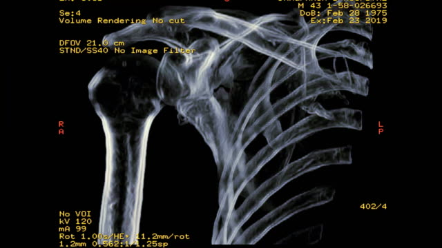ct of right shoulder showing fracture scapula bone 3d rendering image - immagine a raggi x video stock e b–roll