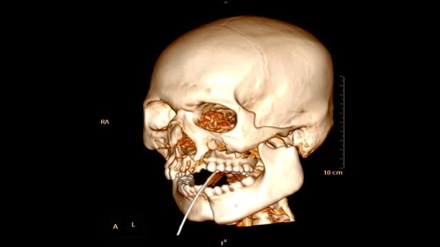 tomografi kafatası / yüz kemik endotrakeal tüp ile hasta travma durumda. - i̇nsan i̇skeleti stok videoları ve detay görüntü çekimi