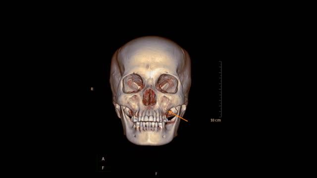 kafa veya yüz kemik ct scan hasta travma durumda 3d görüntü kırık maksiller kemik gösteren render. tıbbi teknoloji konsepti. - i̇nsan i̇skeleti stok videoları ve detay görüntü çekimi