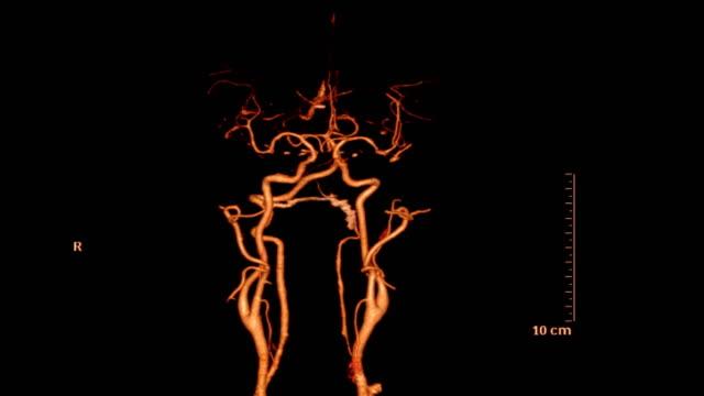 vídeos de stock e filmes b-roll de cta of the brain 3d rendering image - enfarte