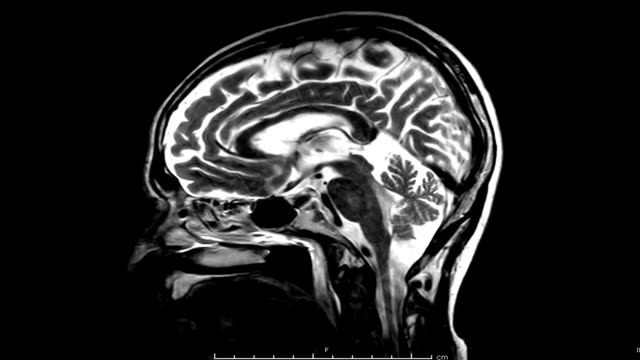MRI of the brain sagittal  plane with contrast media MRI of the brain sagittal  plane with contrast media .mediacl technology concept. skull stock videos & royalty-free footage