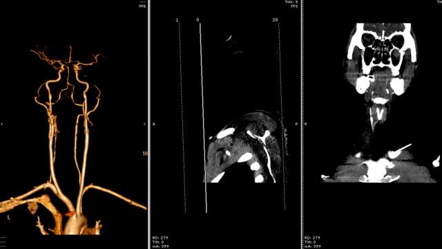 vídeos de stock e filmes b-roll de cta  of the neck . - aorta
