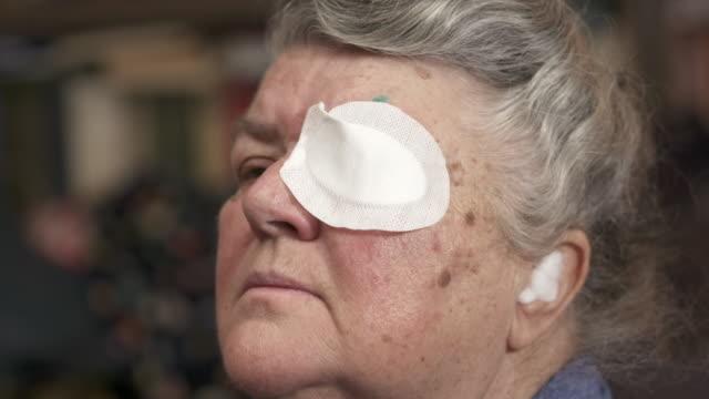 白内障手術後の保護眼帯を持つ老婦人。 - 回復点の映像素材/bロール