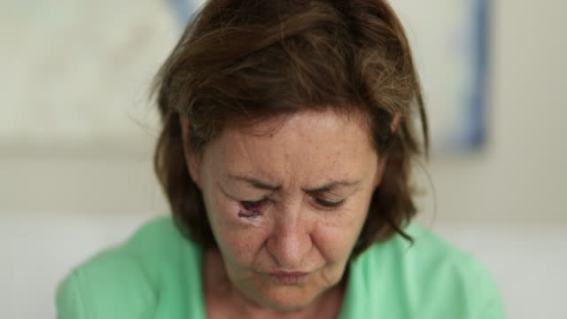 saçları ayarlayan yüzü morarmış yaşlı kadın - sütür eklem stok videoları ve detay görüntü çekimi