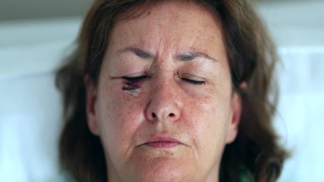 ameliyat sonrası gözleri açık yaralı göz ile yaşlı kadın - sütür eklem stok videoları ve detay görüntü çekimi