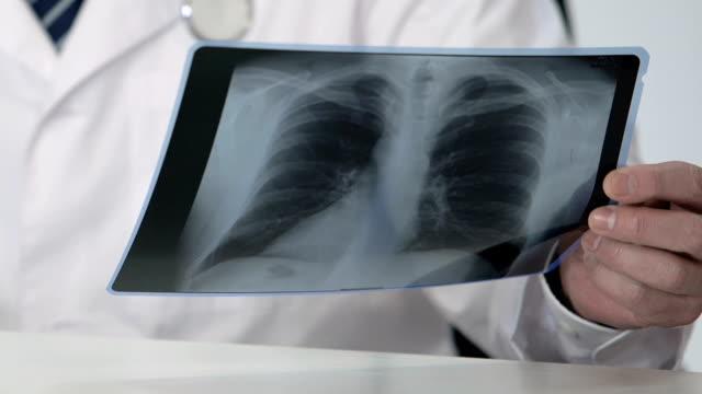 онкологический эксперт проводит сканирование легких здорового пациента, ставит благоприятный диагноз - expert стоковые видео и кадры b-roll