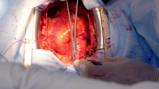 bir cerrah, hastanın kalbini dikmek için makas ve tıbbi iğne kullanır. 4k. - sütür eklem stok videoları ve detay görüntü çekimi