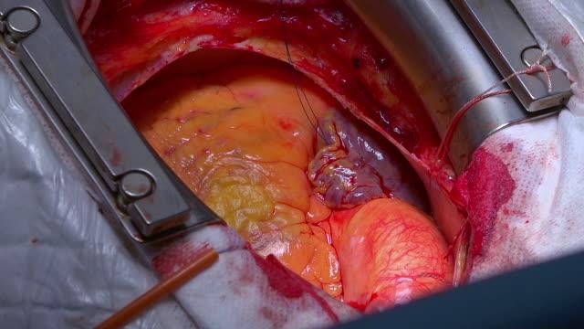 vídeos de stock e filmes b-roll de open heart surgery. a team of surgeons performs an operation in the operating room - aorta