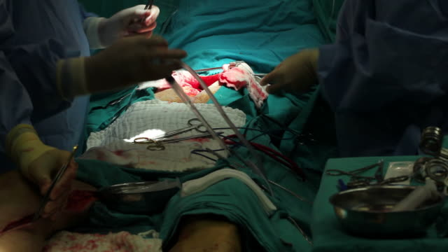 vídeos de stock, filmes e b-roll de aberto cirurgia cardíaca - marcapasso cirurgia cardíaca