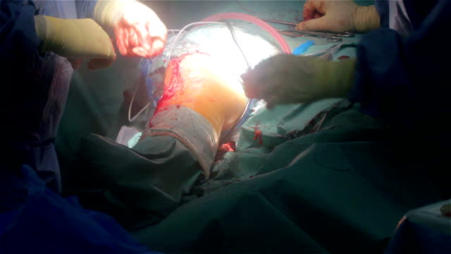 Operating Room Knee Surgeon Closing the Wound video