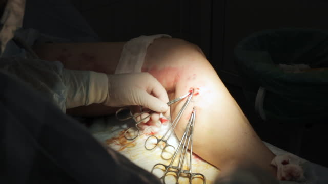 Operation on the female leg. Surgery of varicose veins close-up
